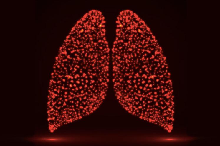 Lung Transplantation Viable Treatment for Hermansky-Pudlak Syndrome Pulmonary Fibrosis