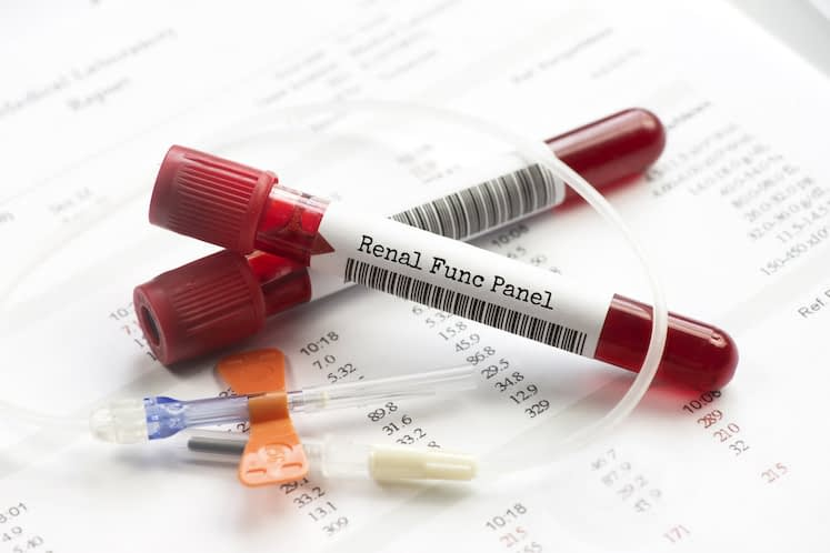 Renal function blood test tubes