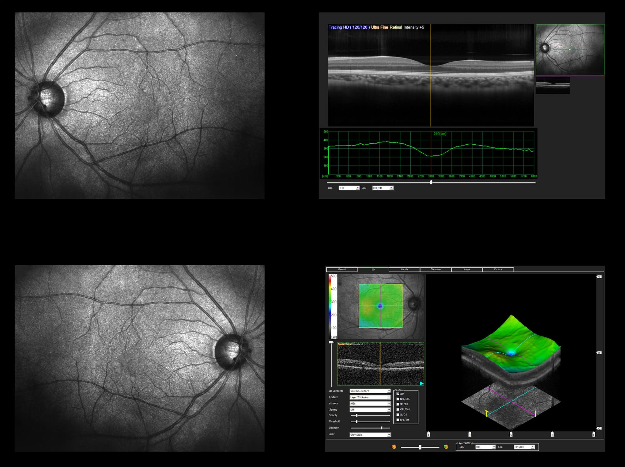 Ophthalmic test – OCT optical coherence tomography measurement. Scan of the macula in retina, layers and thickness of retina.