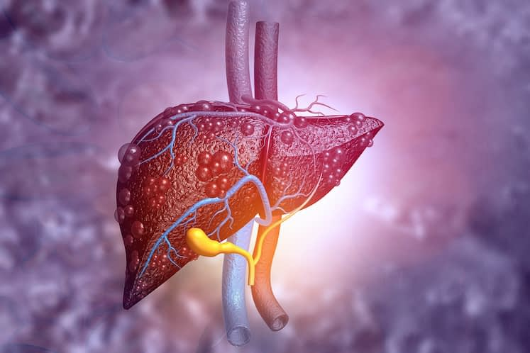 $9.1M Awarded for Liver Cancer Research