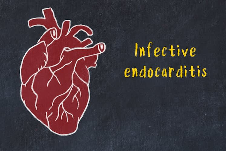Concept of learning cardiovascular system. Chalk drawing of human heart and inscription Infective endocarditis