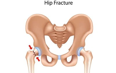 Osteoporosis-Related Hip Fractures: Everything You Need to Know