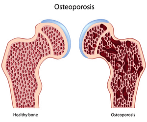 Illustration of Healthy Bone and Osteoporotic Bone