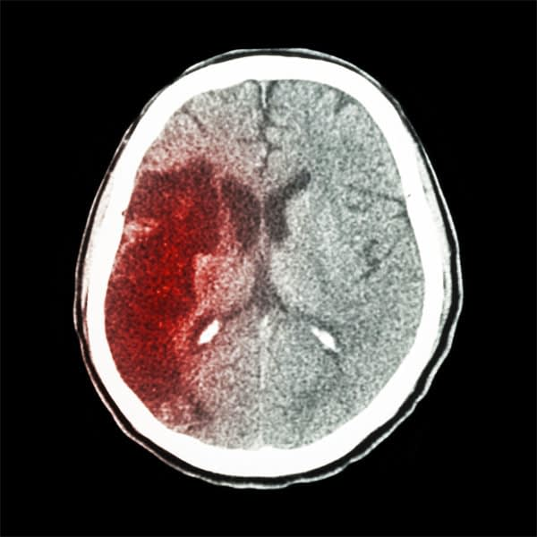 Brain scans are one way to access the risk of a stroke.