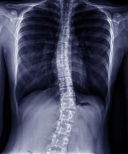 X-ray of spine with scoliosis