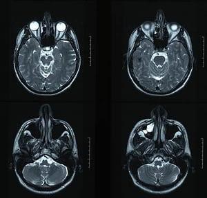 X-rays of brain