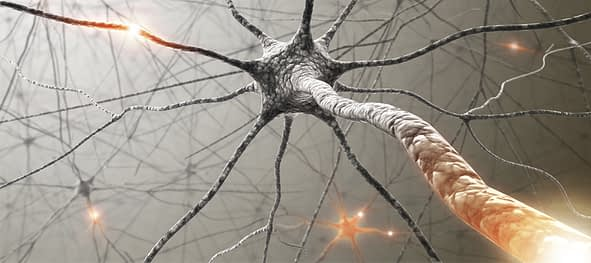 UCNA-Sliders-Neurovascular