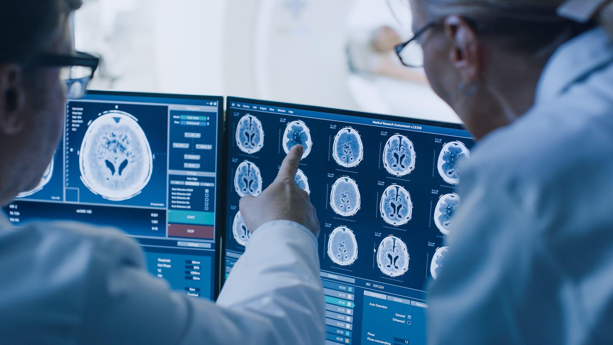Doctors examining brain images