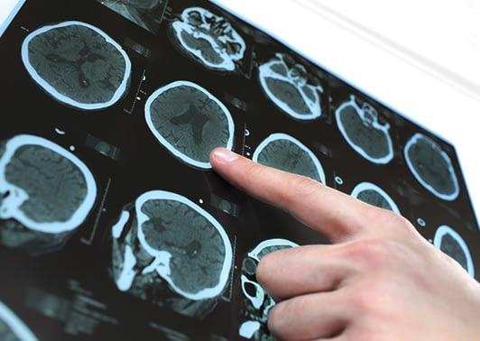 CT scan of brain revealing stroke details.