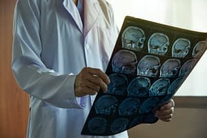 Doctor holding film of brain scans