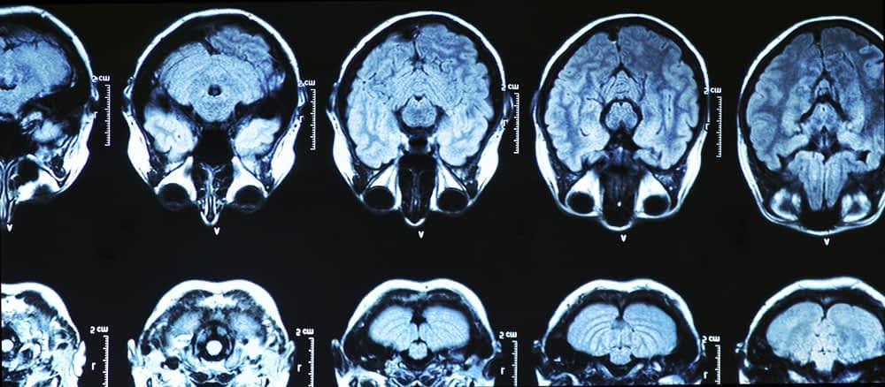 Xray of glioblastomas in brain