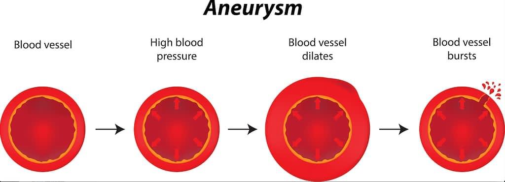 Diagram of blood vessel transforming into aneurysm