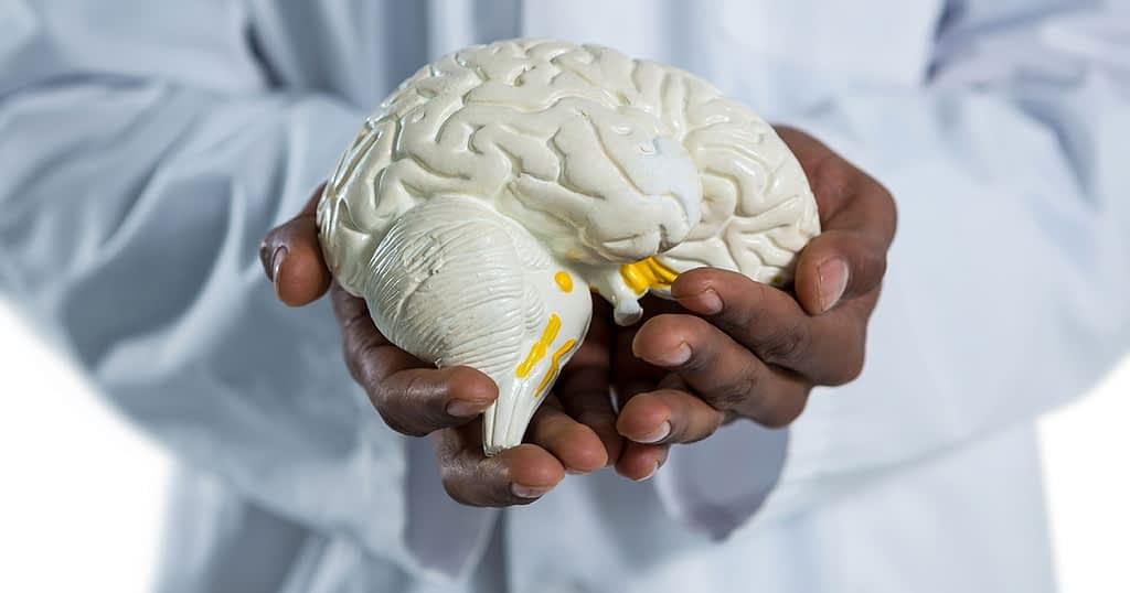 Surgeon holding model of human brain