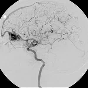 Angiography Showing Arteriovenous Malformation