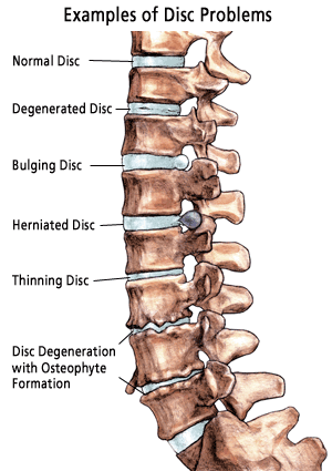 examples of spine disc problems