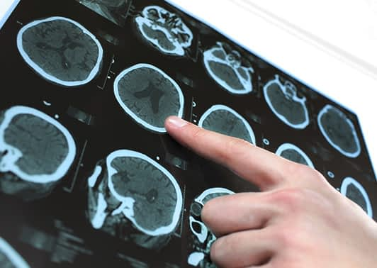 Doctor pointing at x-ray images of brain experiencing strokes