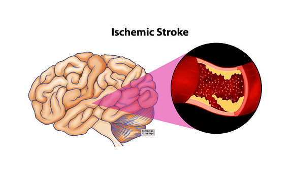An image of an ischemic brain stroke illustration.