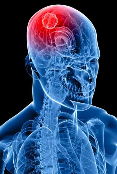 advanced neurosurgery treatments