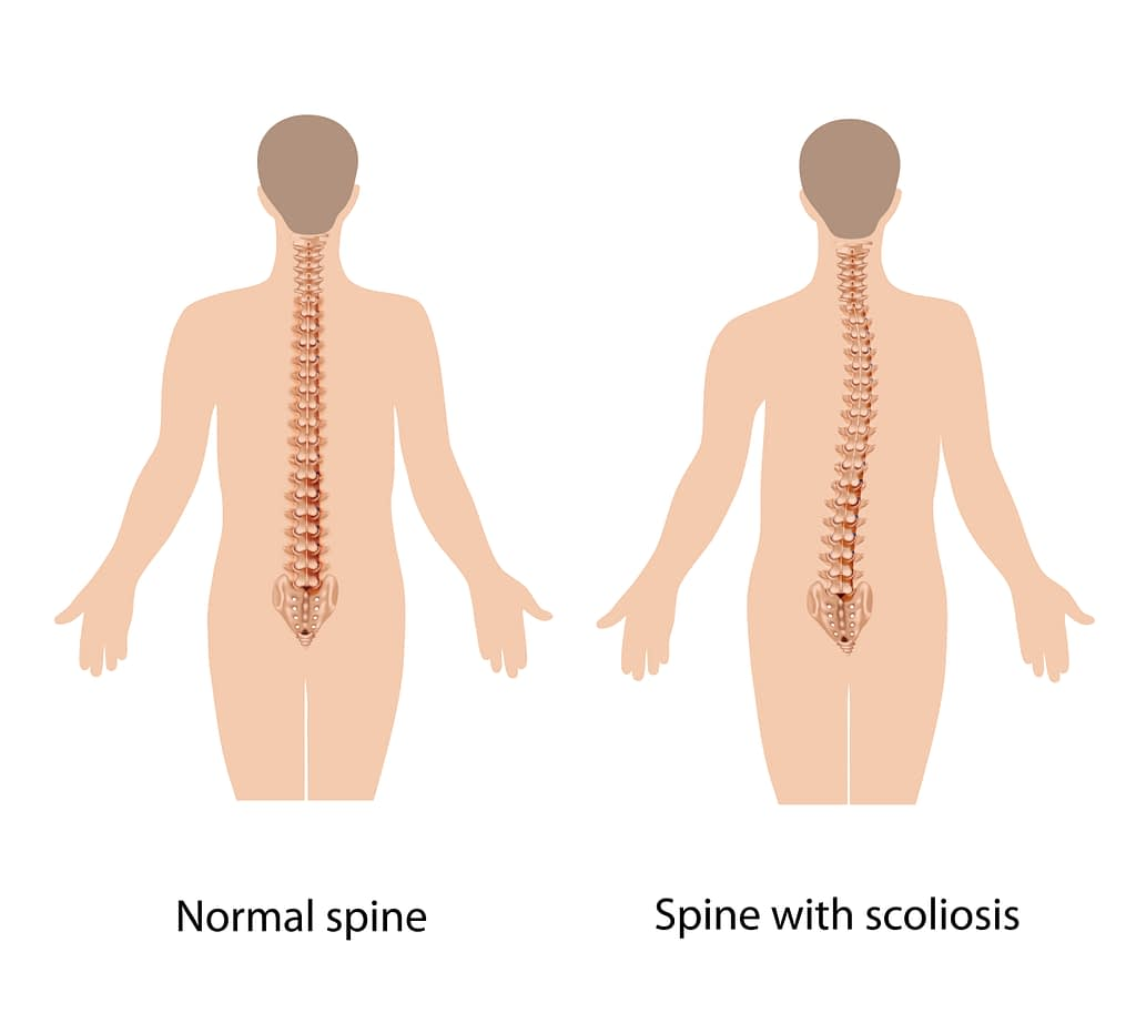 The difference between a normal spine and a spine affected by the condition known as scoliosis.