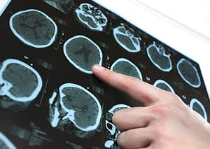 New technology is improving the safety and effectiveness of brain tumor surgery