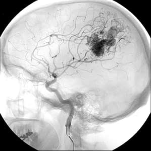 Arteriovenous malformation (AVM) in the brain