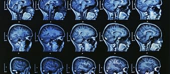 Deep brain stimulation is an advanced treatment for Parkinsons disease