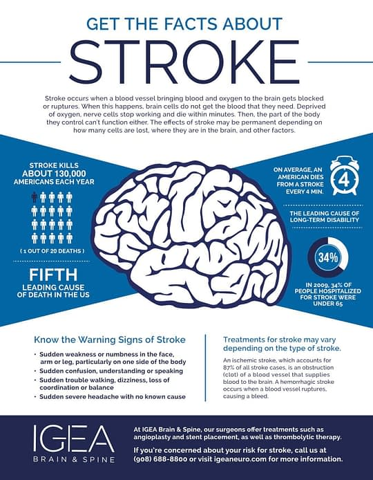 Get The Facts About Stroke