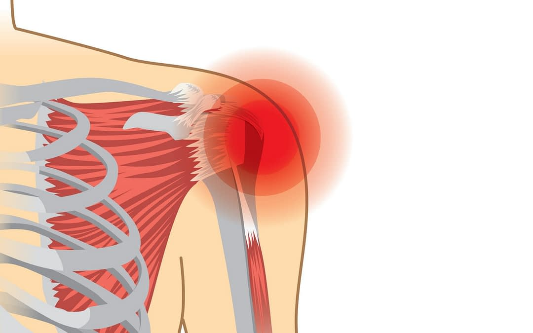 How a Torn Rotator Cuff is Repaired